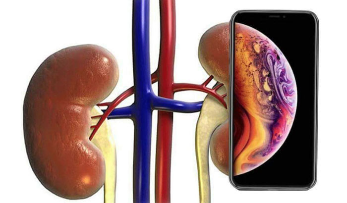iPhone and Kidney meme