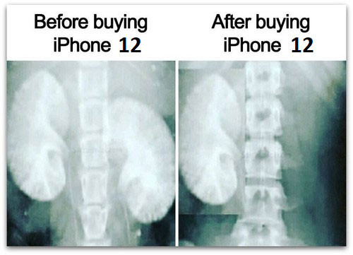 X-ray image of kidneys before and after buying iPhone 12 meme